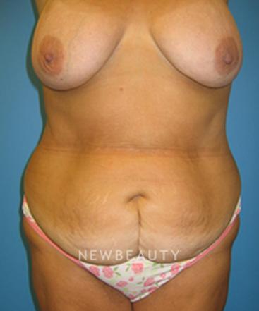 dr-christine-hamori-tummy-tuck-b