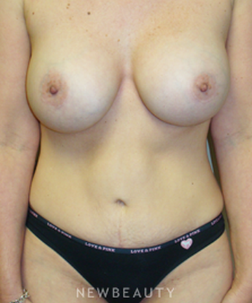 dr-sanjay-grover-breast-augmentation-liposuction-tummy-tuck-b