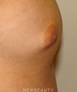 dr-sanjay-grover-nipple-reduction-b
