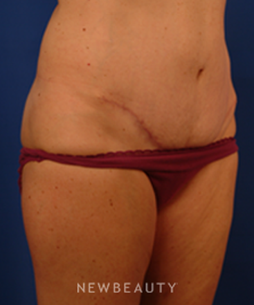 dr-peter-geldner-abdominoplasty-b