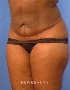 Mini Tummy Tuck Before & After Photos - NewBeauty
