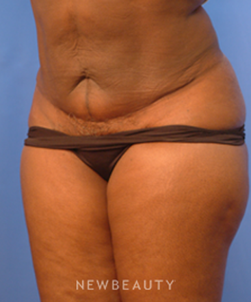 dr-peter-geldner-mini-abdominoplasty-with-vaser-liposuction-b