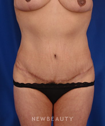 dr-peter-geldner-abdominoplasty-with-vaser-liposuction-b
