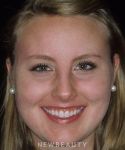 dr-charles-crutchfield-acne-treatment-b