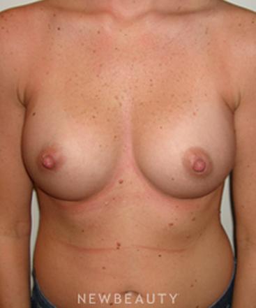 dr-michael-horn-breast-augmentation-b