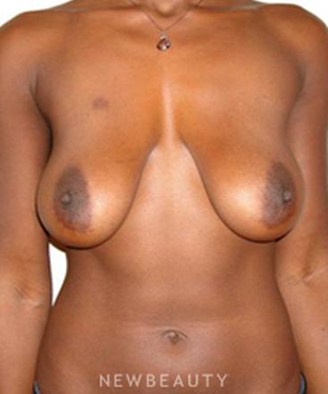 dr-michael-horn-breast-lift-b