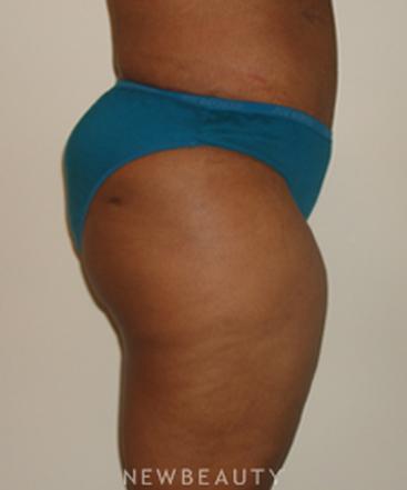 dr-michael-horn-tummy-tuck-liposuction-b