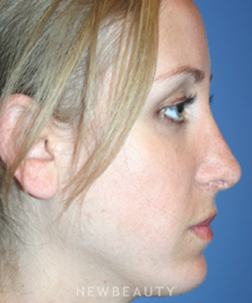 dr-kelly-bomer-chin-augmentation-rhinoplasty-b