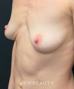 dr-mokhtar-asaadi-breast-augmentation-b