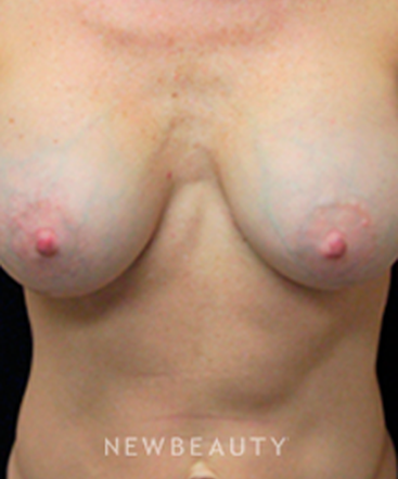 dr-mokhtar-asaadi-breast-enhancement-b