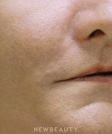 dr-michael-godin-facial-fillers-b
