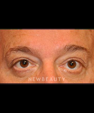 dr-baljeet-purewal-lower-blepharoplasty-b