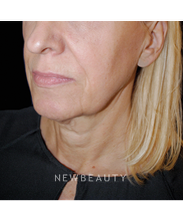 dr-lee-ann-m-klausner-skin-rejuvenation-b