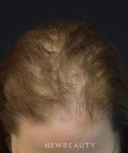 dr-jeffrey-b-wise-female-hair-loss-b