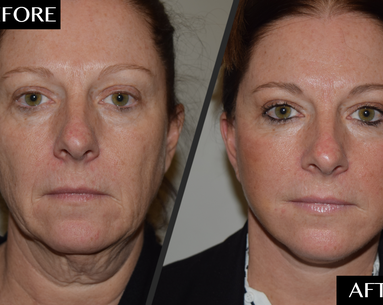 How a Split-Second Decision Restored This Woman's Youthful Face