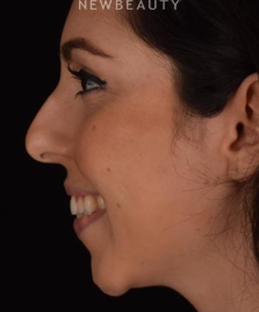 dr-kian-karimi-chin-augmentation-rhinoplasty-b