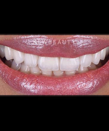 dr-husam-almunajed-smile-makeover-revision-b