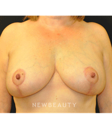 dr-andrew-smith-breast-augmentation-lift-b