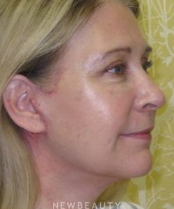 dr-beth-collins-facelift-b