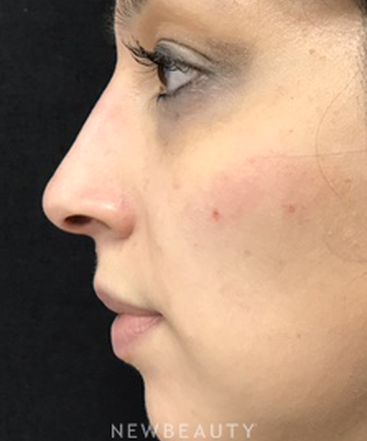 dr-julie-russak-nonsurgical-rhinoplasty-b