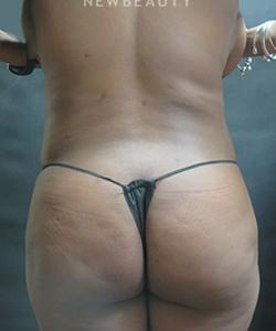 dr-elie-levine-liposuction-b