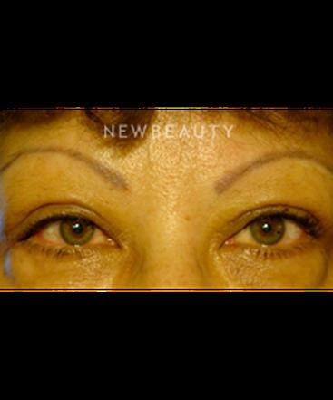 dr-baljeet-purewal-eyelift-b