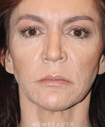 dr-ann-zedlitz-nonsurgicl-rhinplasty-b