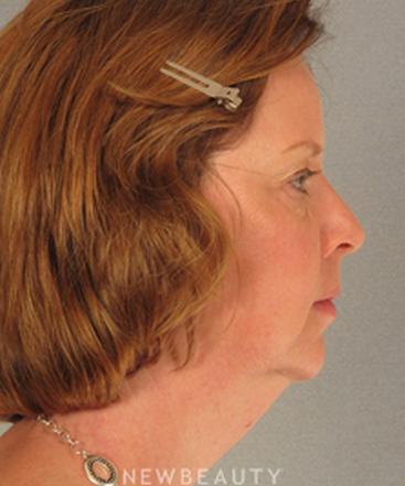 dr-henry-mentz-eyelift-facelift-necklift-b