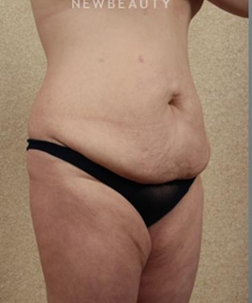 dr-benjamin-schlechter-tummy-tuck-b