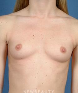 dr-bradley-calobrace-breast-augmentation-b