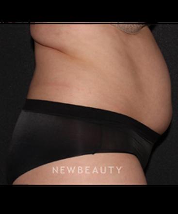 dr-quenby-erickson-abdominal-coolsculpting-b