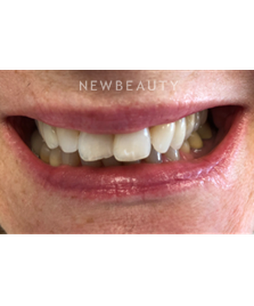 dr-swati-agarwal-smile-makeover-b
