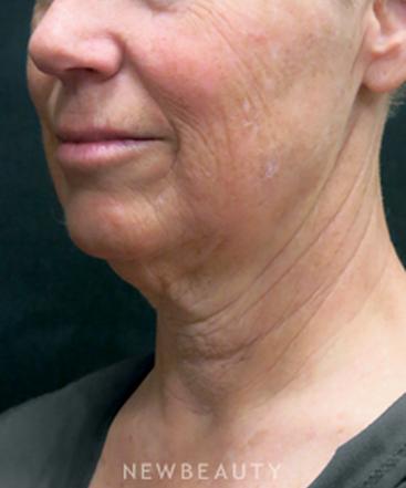 dr-elie-levine-facelift-necklift-chin-augmentation-b