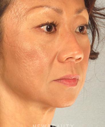 dr-henry-mentz-limited-incision-facelift-b