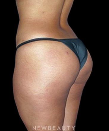 dr-rolando-morales-jr-enhancing-feminine-curves-b