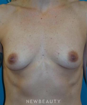 dr-adam-hamawy-breast-implants-b