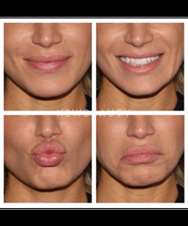 dr-quenby-erickson-refyned-lips-b