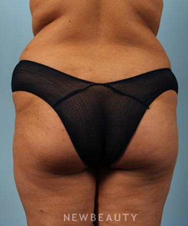 dr-benjamin-schlechter-brazilian-butt-lift-b
