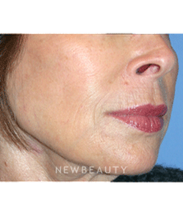 dr-kelly-bomer-injectable-fillers-b