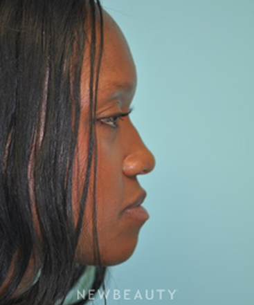 dr-shervin-naderi-nonsurgical-rhinoplasty-b