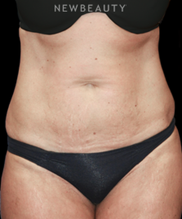 dr-bryan-w-gawley-tummy-tuck-with-lipo-b