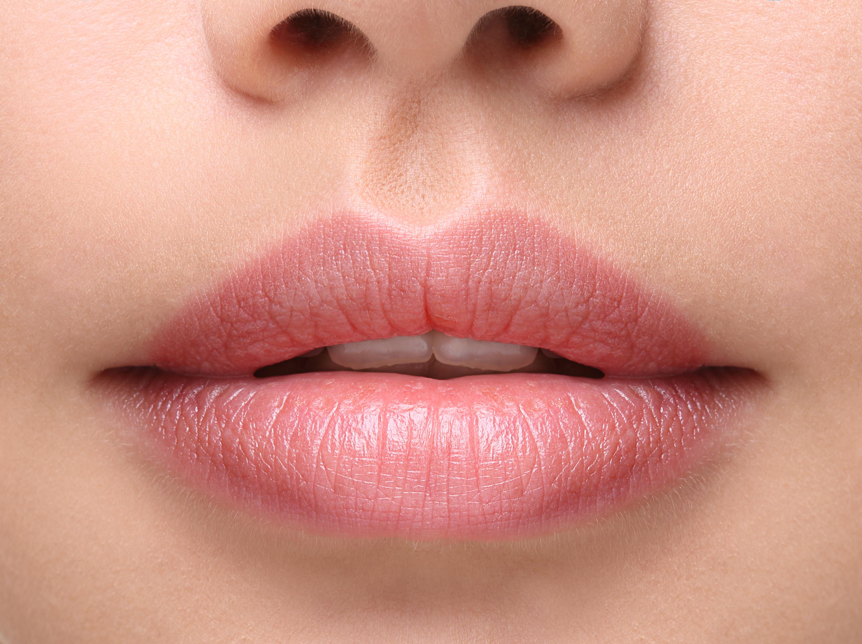 Fda Approves Longer Lasting Lip Filler - News -4113