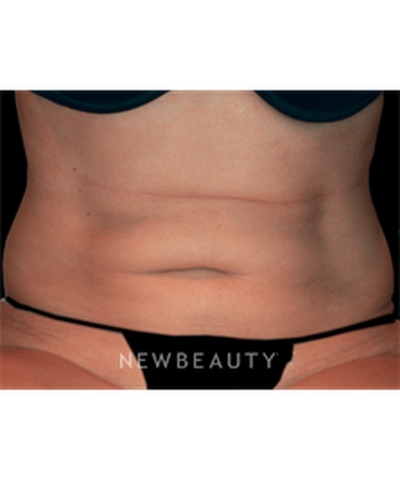 dr-mitchell-j-ross-coolsculpting-b