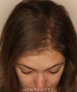 dr-doris-day-hair-loss-treatment-b