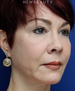 dr-joseph-russo-restoring-youthfulness-face-ebg-b