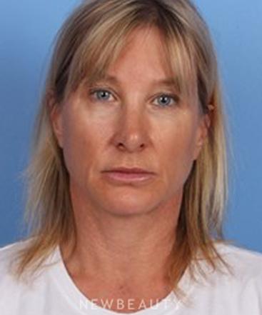 dr-kelly-bomer-anti-aging-b