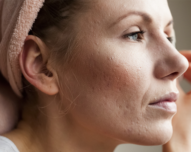 A Vaccine for Acne Might Be Coming Very Soon