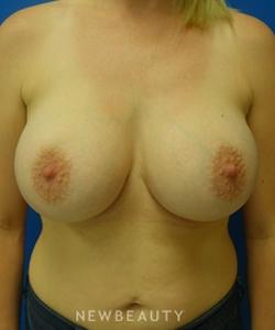 dr-matthew-endara-breast-implants-b