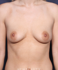 la-jolla-cosmetic-surgery-breast-augmentation-b