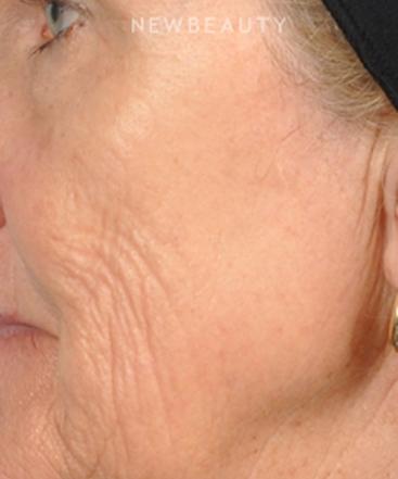 dr-bradley-bengtson-skin-rejuvenation-b